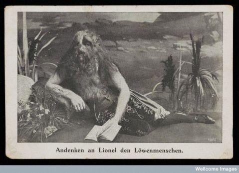 גלויה המציגה את ליונל, הילד בעל פני האריה