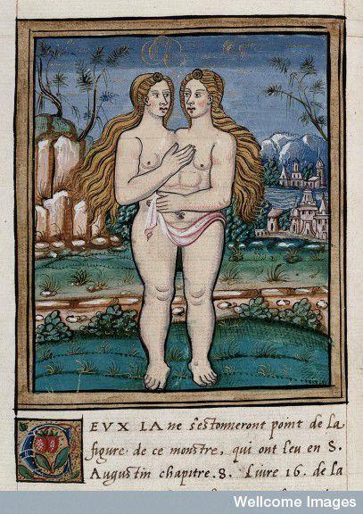 מפלצת (תאומים סיאמיים) שנולדה בגבולות של אנגליה ונורמנדי