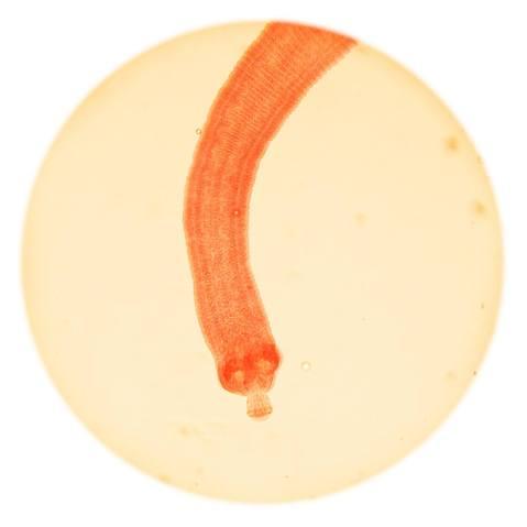 תצלום מיקרוסקופ של שרשור ננסי